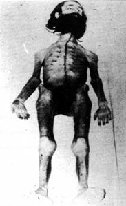 Autopsy photo of an emaciated Holger Meins: over six feet tall, he weighed less than 100 pounds at death...
